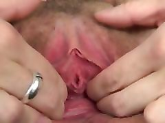 Gyno, Real injection gyno, Pornhub.com